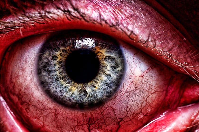 Kan UV-strålning skada ögonen?